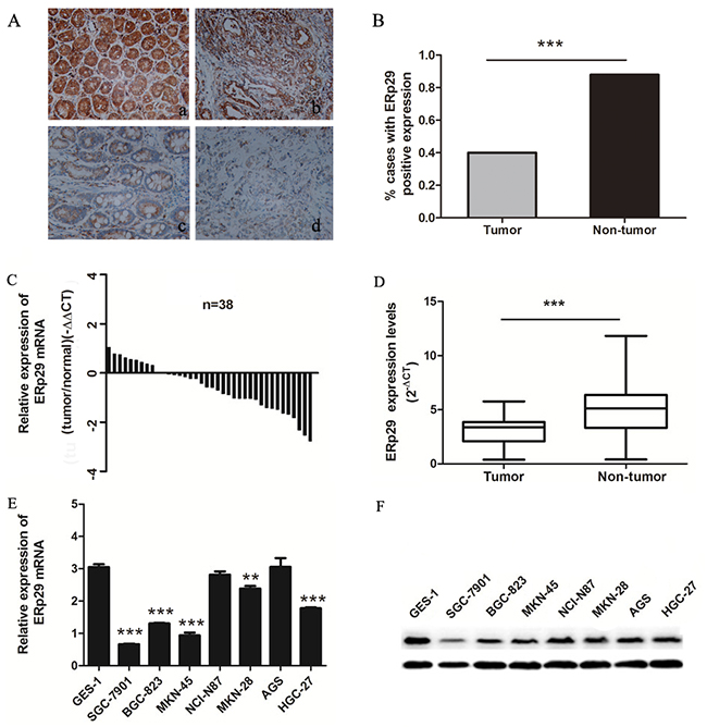Expression of ERp29 in gastric cancer tissues and cell lines.