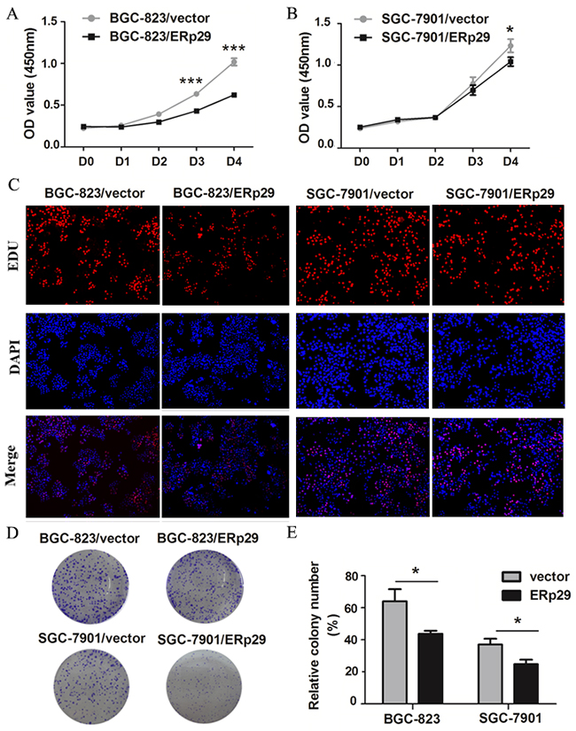 Effects of ERp29 on cell growth in GC cells.