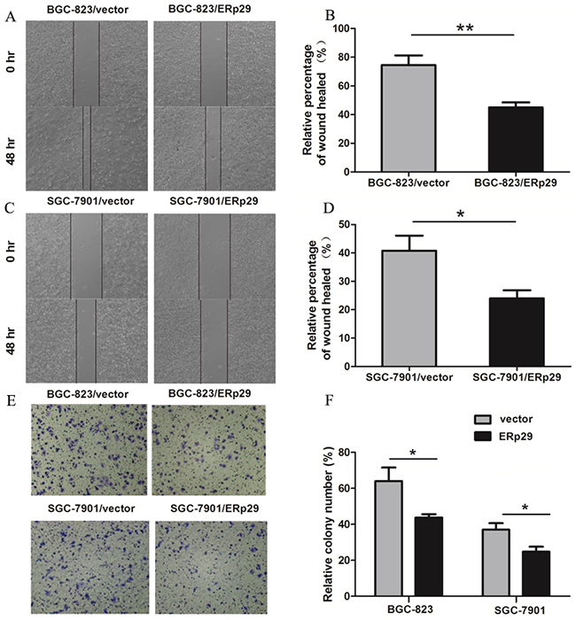 Effects of ERp29 on cell migration in GC cells.