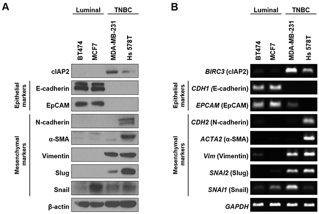 Comparison of cIAP2 expression and EMT-associated molecules in breast cancer cells.