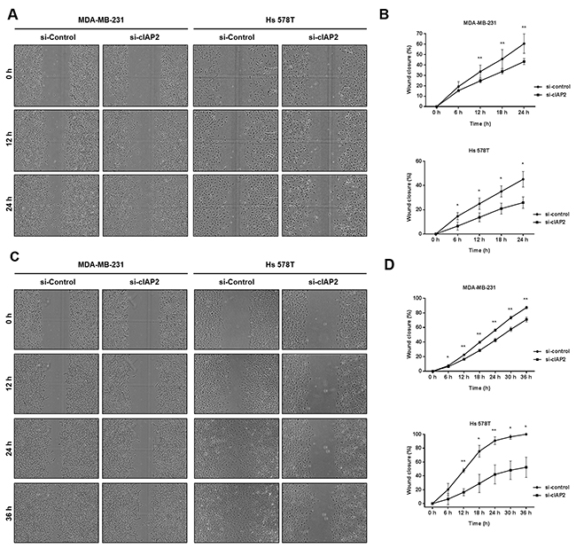 Silencing of cIAP2 suppressed the migration and invasion ability of TNBC cells (MDA-MB-231 and Hs 578T).