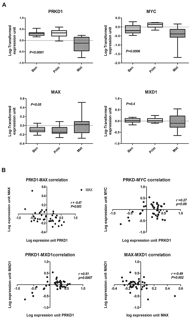 The expression of MAX reversely correlates with PrKD1 in human prostate cancer tissue.