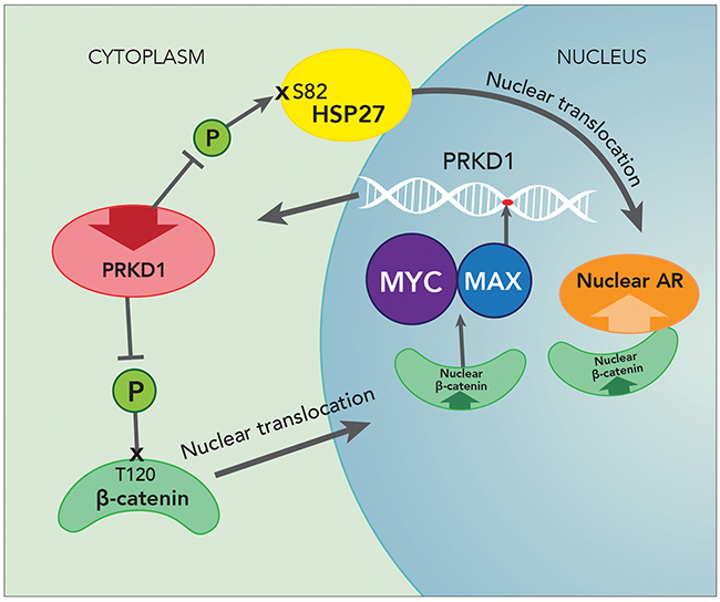 Auto repressive loop of PrKD1 down regulation in prostate cancer.