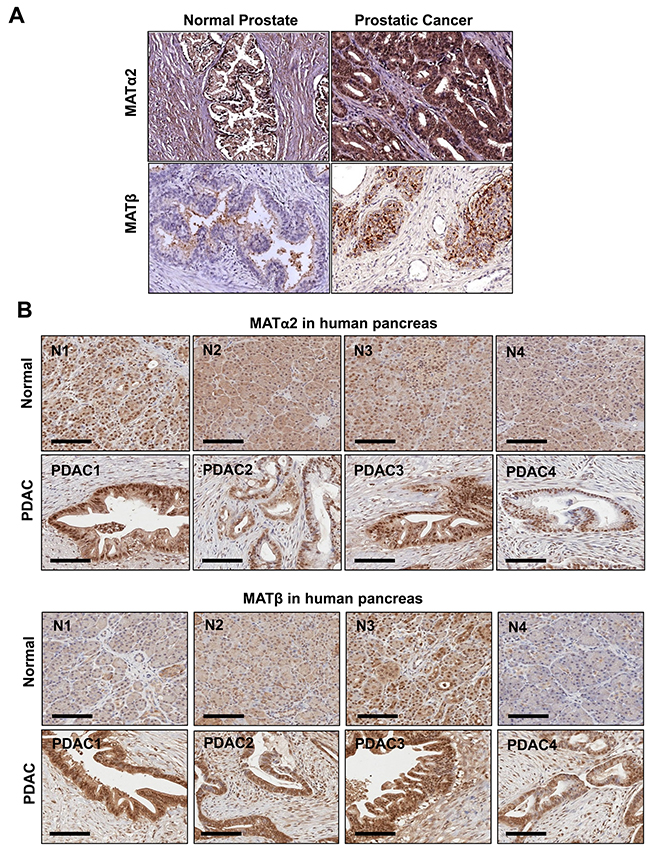 MAT2A and MAT2B expression is upregulated in human prostate and pancreatic cancers.