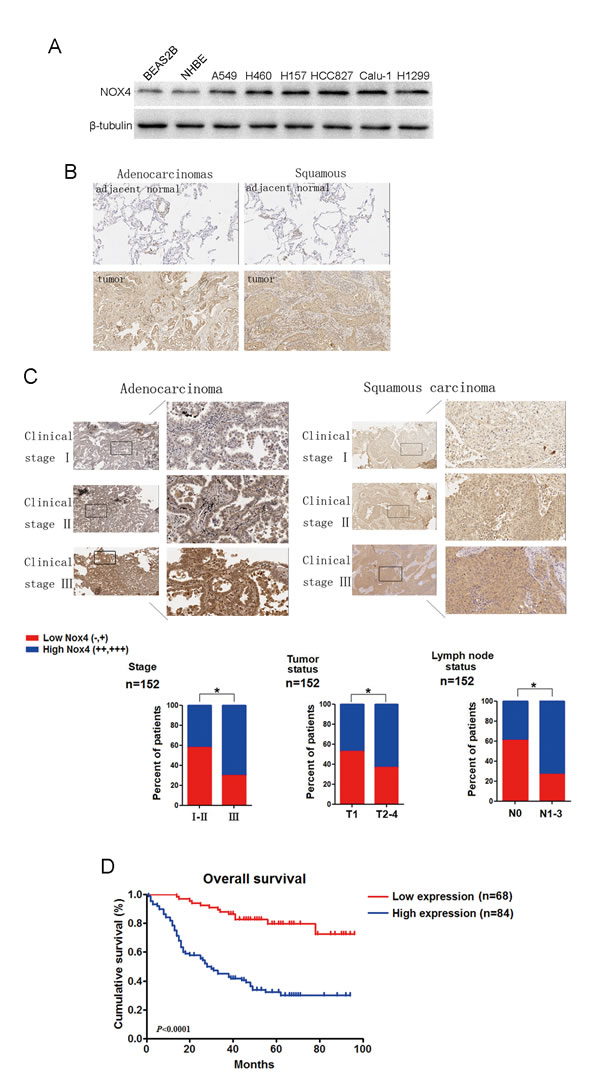 NOX4 is positively correlated with stage, tumor status, lymph node status, invasion and poor prognosis of NSCLCs.
