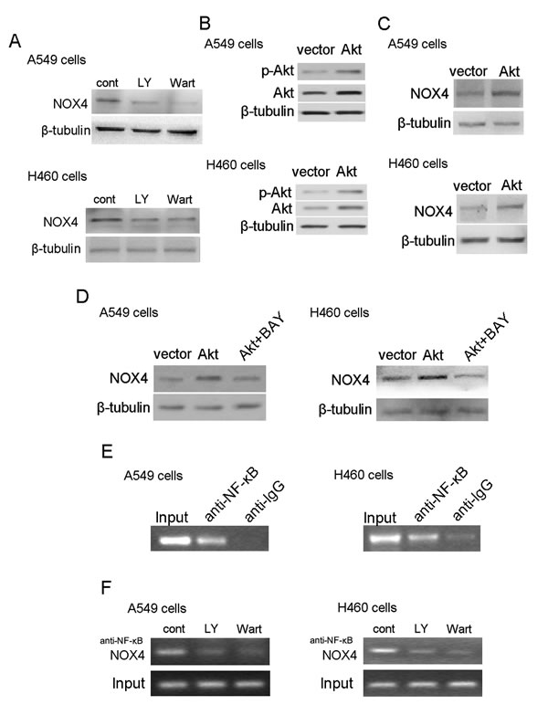 PI3K/Akt pathway regulates NOX4 expression in NSCLC cells through NF-κB.
