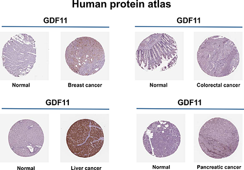 Expression of GDF11 in human cancers.