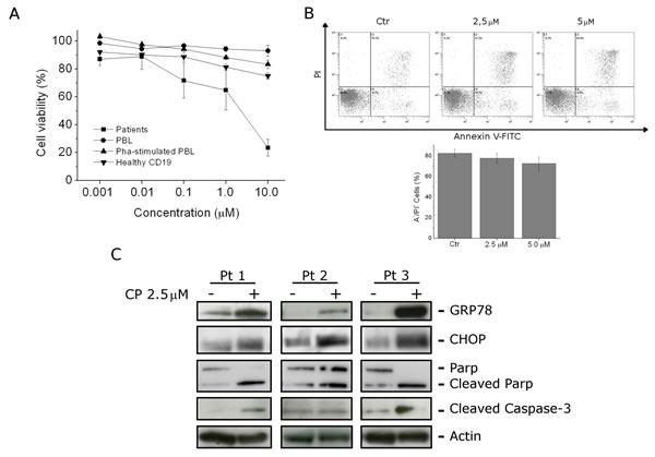 FIGURE 6: CP effects on B-ALL primary cultures.