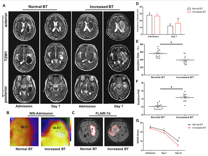 Increased brain temperature reduced hematoma absorption and aggravated neurological deficits in intracerebral hemorrhage (ICH) patients.