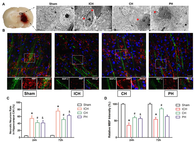 Neuronal necrosis and demyelinating injury induced by intracerebral hemorrhage (ICH) was improved by hypothermia.