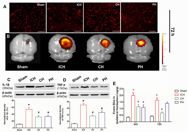 Effects of hypothermia on early blood-brain barrier damage following intracerebral hemorrhage (ICH).
