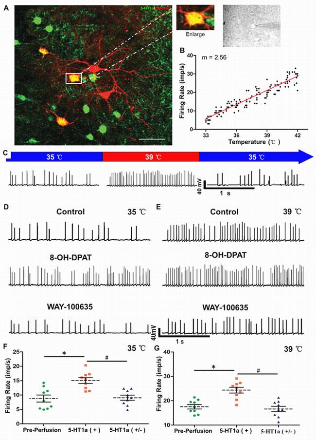 Roles of 5-HT1a receptor in spontaneous firing of warm-sensitive neurons in PO/AH area.