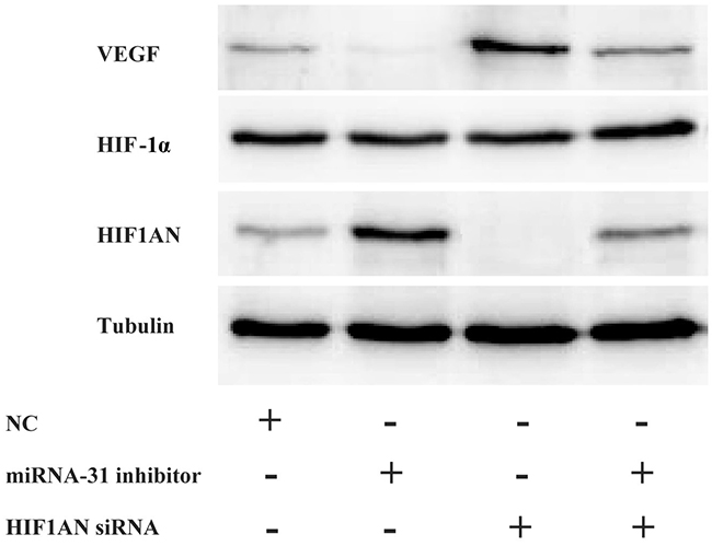 The expression levels of HIF1AN, HIF-1α and VEGF were examined by Western blotting after the downregulation of miRNA-31 and HIF1AN.