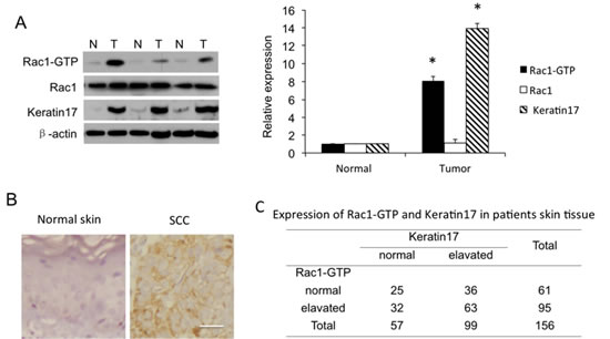 Rac1 activity as Rac1-GTP and Rac1 and keratin 17 expression in human skin squamous cell carcinoma (SCC) tissue.