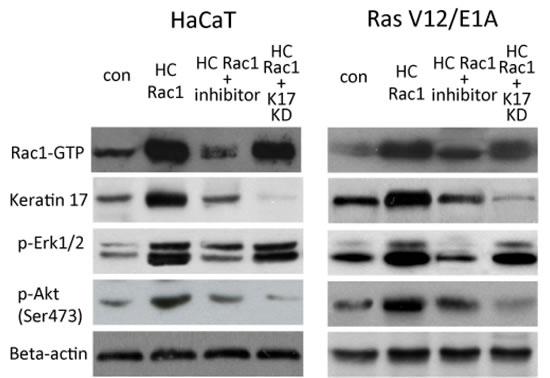 Rac1 and Erk and Akt signaling by keratin 17.