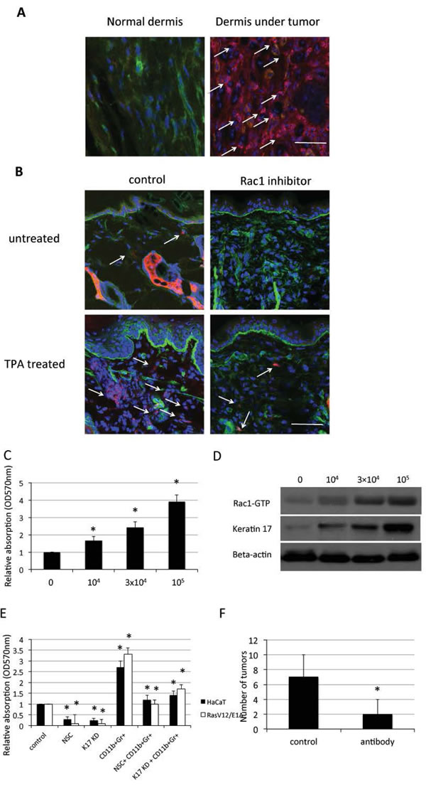 CD11b+Gr1+ cell infiltration and keratinocyte proliferation through Rac1 and keratin 17.