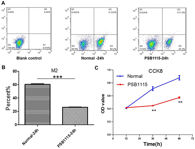 PSB1115 treatment downregulates adenosine's effect on macrophages and tumor growth in coculture condition.