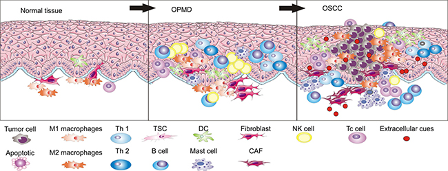 During the development process from normal epithelia to OSCC through OPMD, immune cell populations are different in number and types.