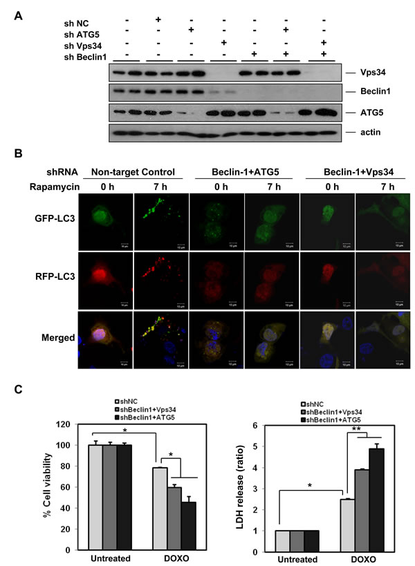Autophagy has a pro-survival role in doxorubicin-induced cell death.