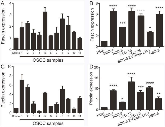 Fascin and plectin are overexpressed in OSCCs and OSCC-derived cell lines.