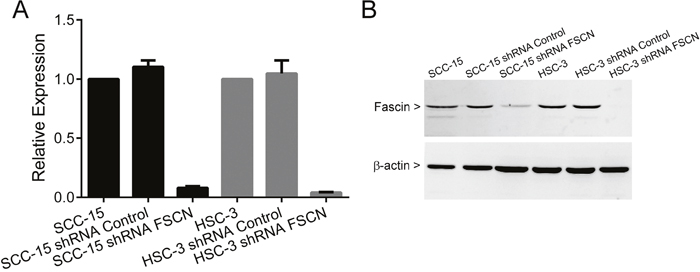 Fascin knockdown efficiency in SCC-15 and HSC-3 cells. Cells were transduced with lentivirus expressing shRNA sequences against fascin (shRNA FSCN cells) and control (shRNA Control cells) as outlined in the methods.