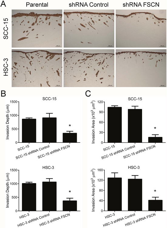 Fascin downregulation inhibits the invasion of SCC-15 and HSC-3 cells in the myoma organotypic invasion model.