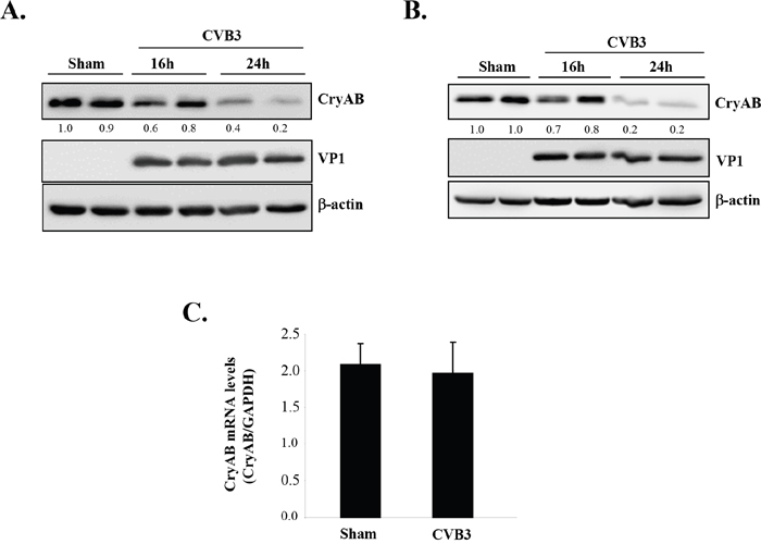CVB3 infection leads to downregulation of CryAB.