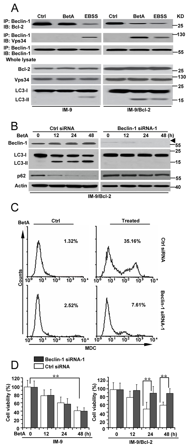 Beclin-1 is required for autophagic cell death in IM-9/Bcl-2 cells.
