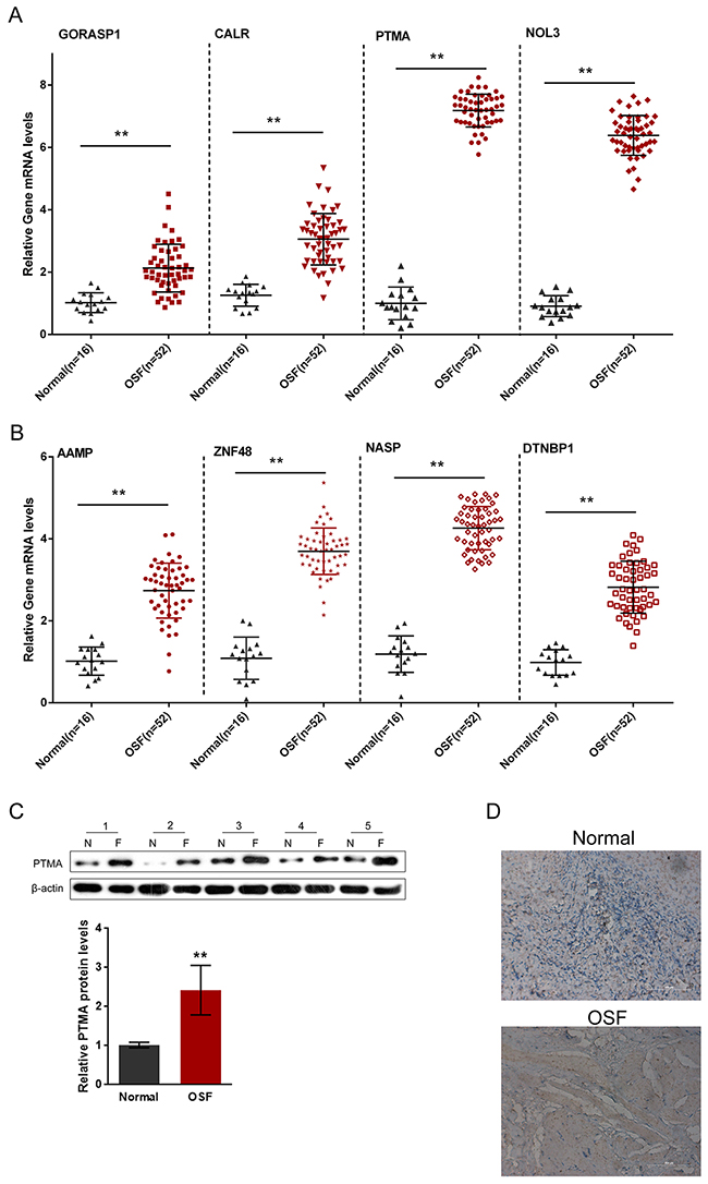 Expression of OSF-associated autoantigens in oral submucosa of OSF patients.