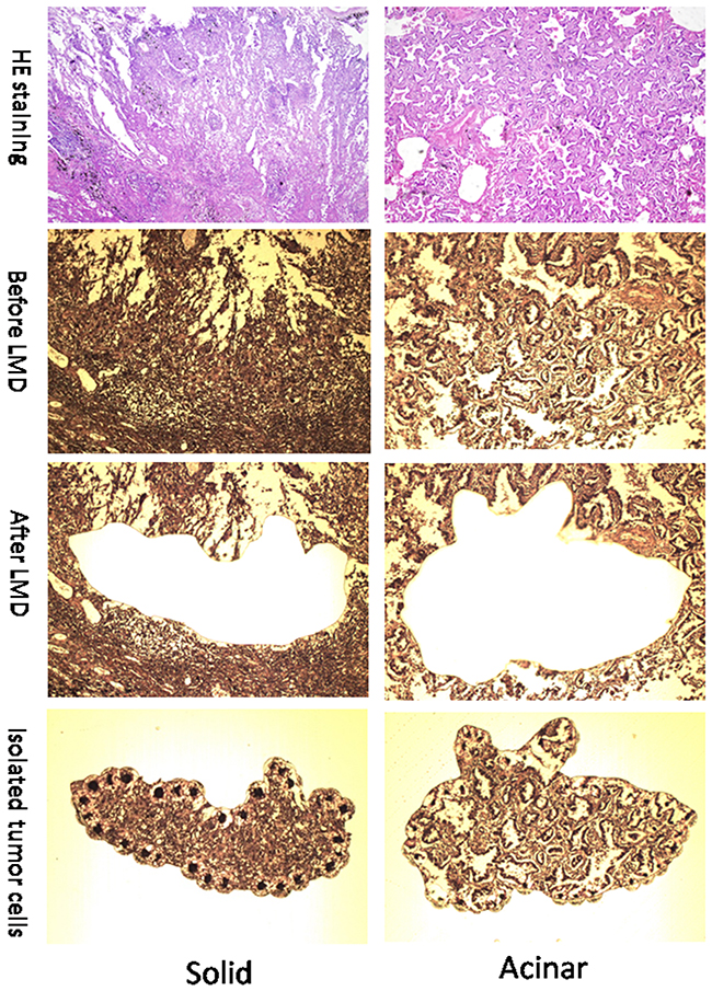Representative images (100x) of solid and acinar subtypes of Lung AC.