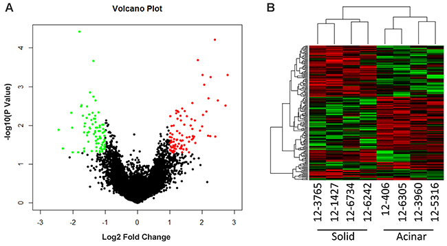 Microarray gene expression profiling of acinar and solid subtype of Lung AC.