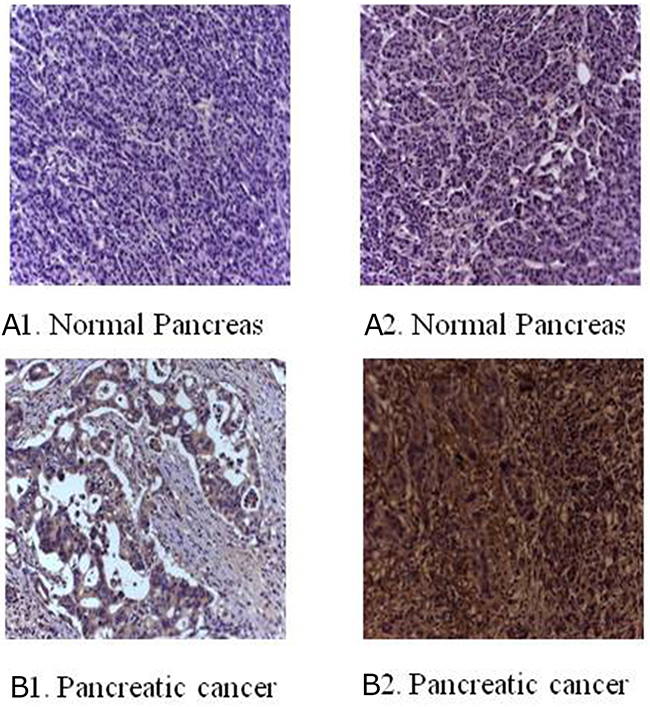 Immunohistochemical staining for B7-H3 in clinical specimens.