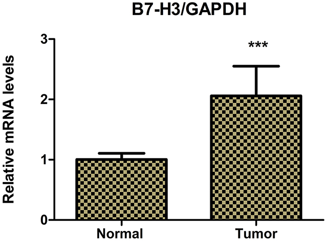Real-time PCR determined the relative mRNA expression levels of B7-H3 in pancreatic carcinoma tissues and adjacent normal pancreatic tissues of 42 patients with pancreatic carcinoma.