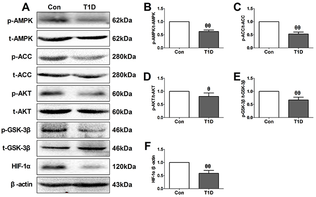 Type 1 diabetic rats showed reduced myocardial AMPK/ACC signaling and AKT/GSK-3β/HIF-1α signaling.