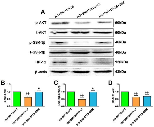 LY294002 blunted cellular AKT/GSK-3β/HIF-1α signaling while 2-methoxyestradiol reduced HIF-1α expression without affecting AKT/GSK-3β signaling.