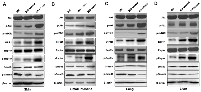 Obese donor splenocytes enhance aGVHD severity through Akt/mTOR, S1PR1/ mTOR and Smad3 signaling in the skin, small intestine, lung and liver.