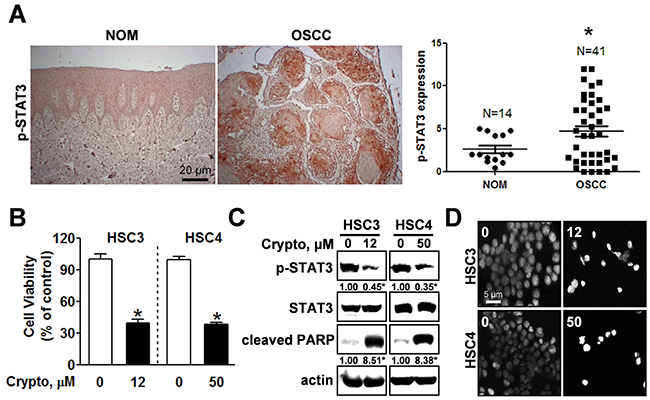 STAT3 is hyper-phosphorylated in OSCC and inhibiting phosphorylation of STAT3 by cryptotanshione triggers apoptosis in oral cancer cell lines.