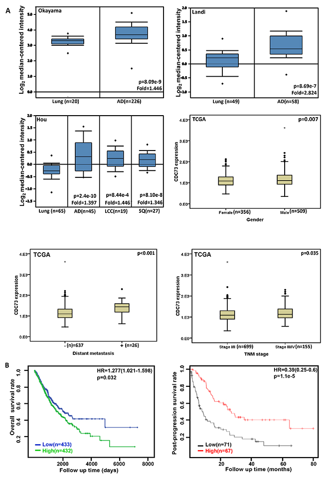 The clinicopathological significances of CDC73 expression in lung cancer.
