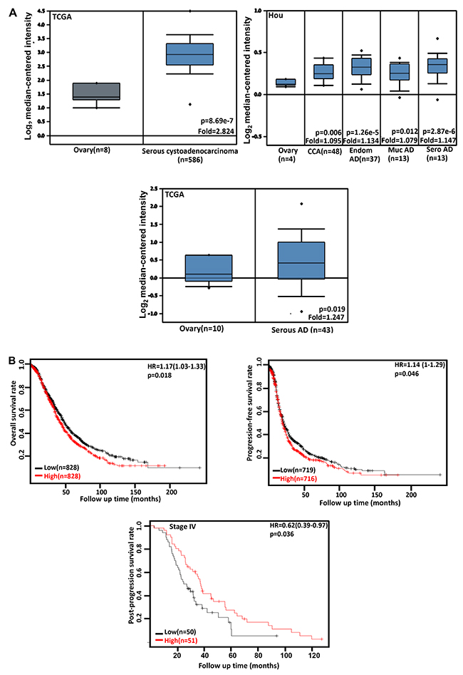 The clinicopathological significances of CDC73 expression in ovarian cancer.