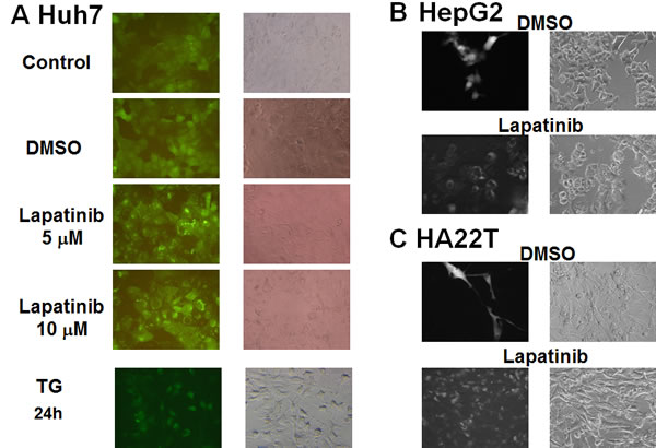 Induction of LC3 aggregations by lapatinib in HCC cells.