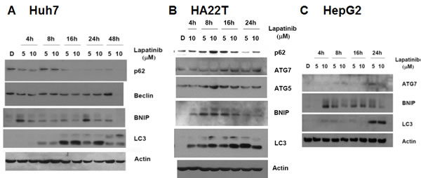 Induction of LC3 aggregations and autophagy-related genes by lapatinib in Huh7 (A), HA22T (B) and HepG2 (C) HCC cells.