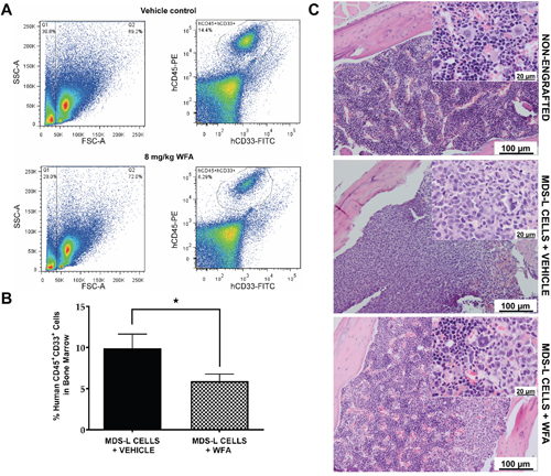 WFA significantly reduces engraftment of MDS-L cells in the bone marrow of NSGS mice.