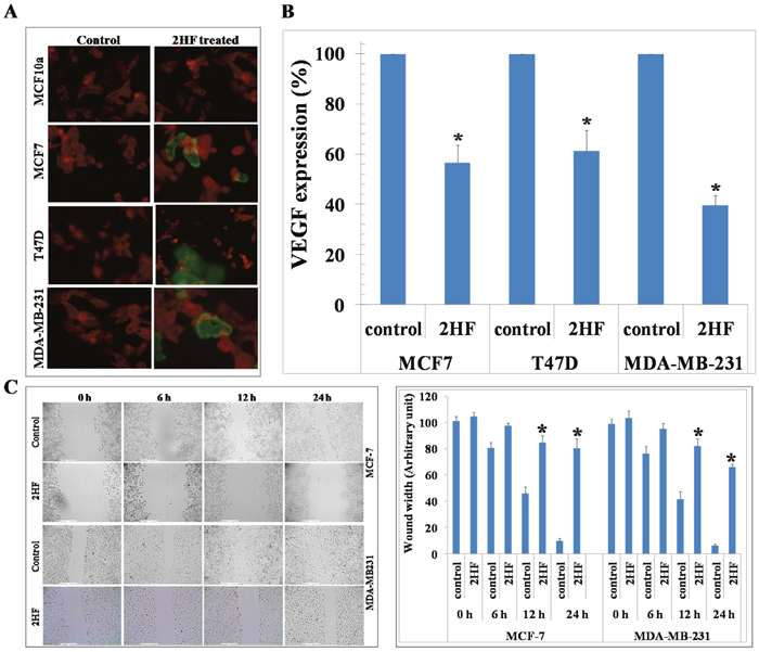 2HF induces apoptosis as assessed by TUNEL assay, decreases VEGF and inhibits migration of breast cancer cells.