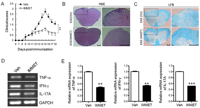 H3R agonist immethridine could alleviate the severity of EAE.