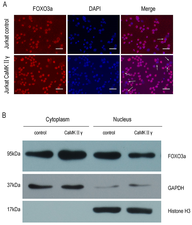 CaMKIIγ-mediated phosphorylating FOXO3a excludes it from the nucleus.