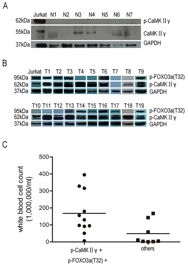Activated CaMKIIγ is present in primary T-ALL cells not in PBMC.