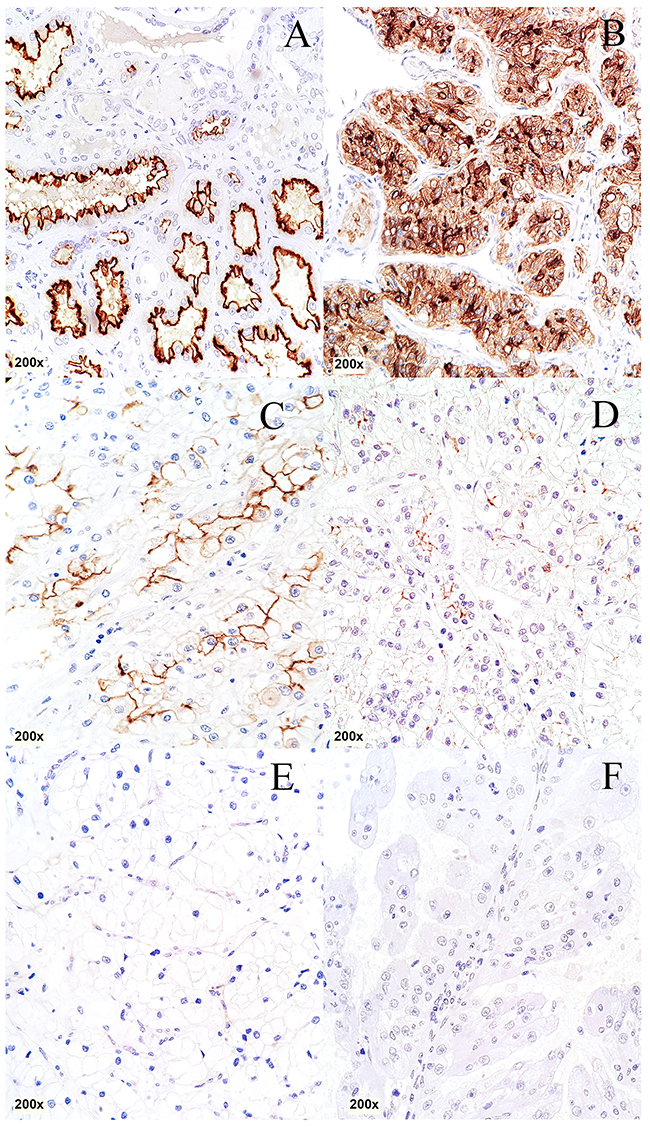 Immunohistochemical staining of CDHR5 in different histological subtypes of RCC.