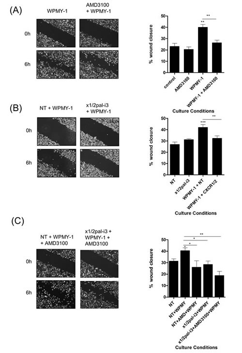 Fibroblasts accelerate PC3 cell motility through a CXCR4-dependent mechanism.