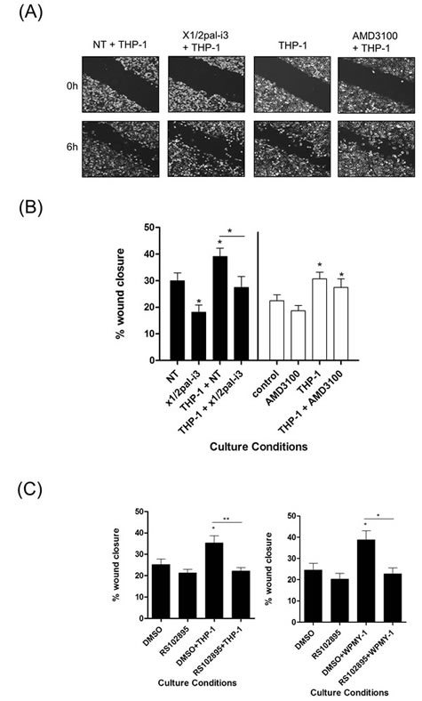 Macrophage-promoted acceleration of prostate cancer cell motility is sensitive to CXCR1/CXCR2 inhibition.