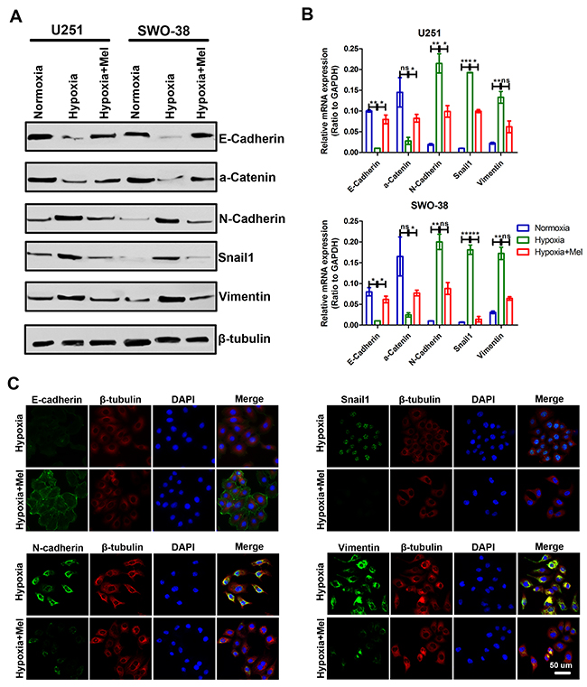 Effect of melatonin on the transition between epithelial and mesenchymal phenotypes in glioma cells under hypoxic stress.